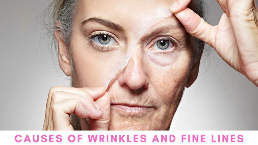 Causes of Wrinkles and Fine Lines