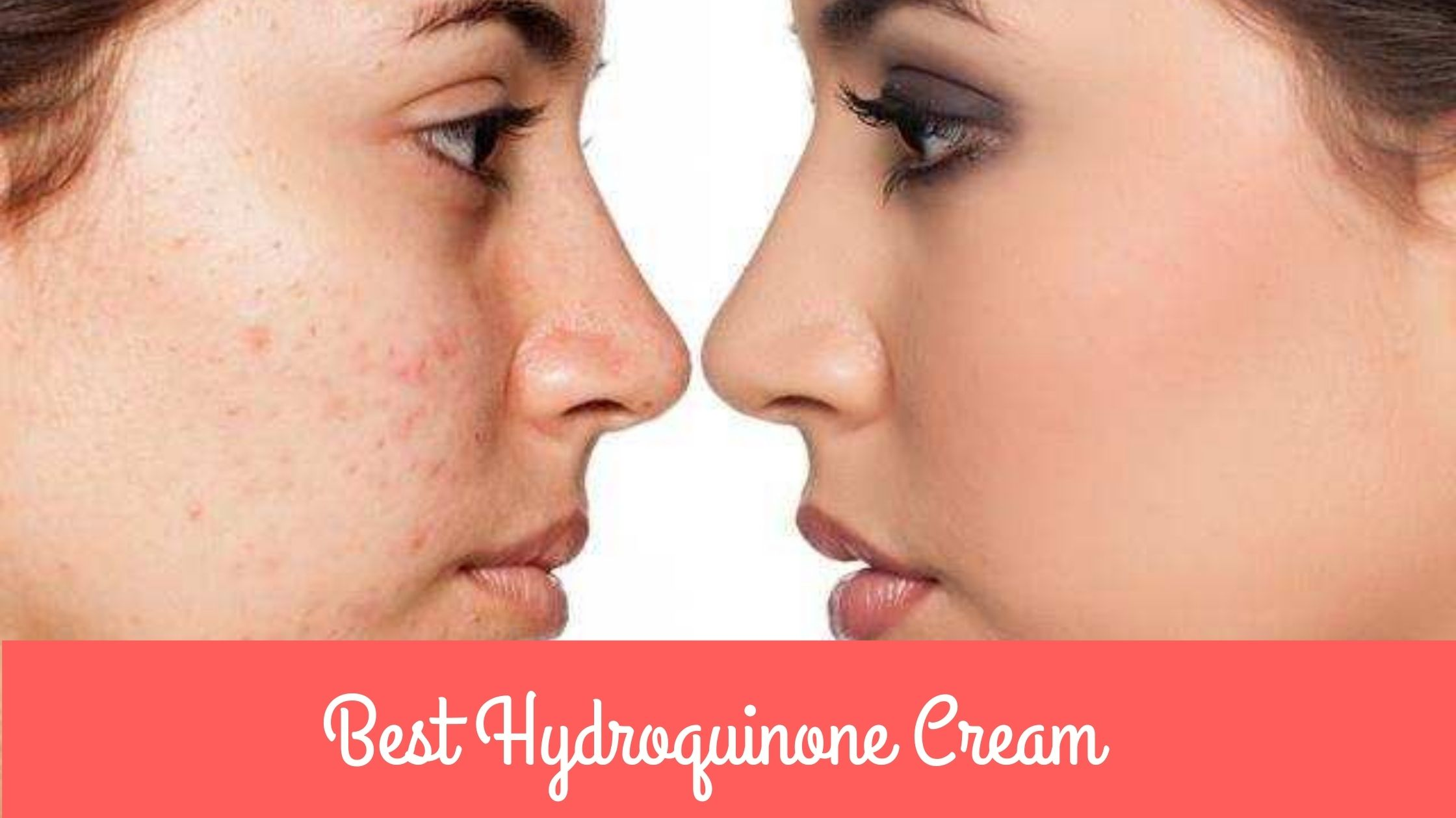 Best Hydroquinone Cream for Skin Bleaching & Uneven Skin Tone